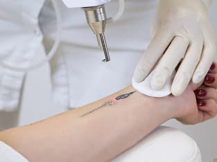 Tattoo removal treatments in Coimbatore